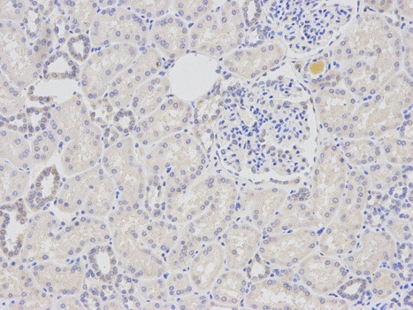 Immunohistochemistry (Formalin/PFA-fixed paraffin-embedded sections) - Anti-DDB2 antibody (ab175409)
