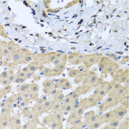 Immunohistochemistry (Formalin/PFA-fixed paraffin-embedded sections) - Anti-LETMD1/HCCR-1 antibody (ab175410)