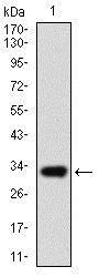 Western blot - Anti-ABCG5 antibody [1B5E10] (ab175421)