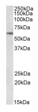 Western blot - Anti-PLK1 antibody (ab175443)