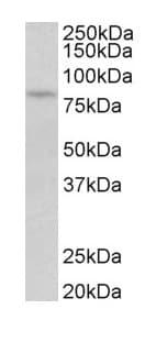 Western blot - Anti-PKC beta 1 antibody - C-terminal (ab175446)