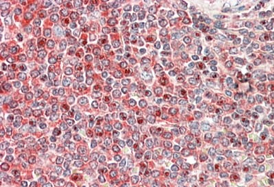 Immunohistochemistry (Formalin/PFA-fixed paraffin-embedded sections) - Anti-PKC beta 1 antibody - C-terminal (ab175446)