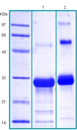 SDS-PAGE - Recombinant Human Sclerostin protein (ab175465)