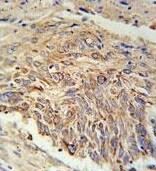 Immunohistochemistry (Formalin/PFA-fixed paraffin-embedded sections) - Anti-EBPL antibody - C-terminal (ab175513)