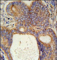 Immunohistochemistry (Formalin/PFA-fixed paraffin-embedded sections) - Anti-LYSMD1 antibody - C-terminal (ab175555)