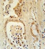 Immunohistochemistry (Formalin/PFA-fixed paraffin-embedded sections) - Anti-ZNF385B antibody - N-terminal (ab175559)