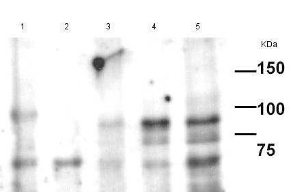 Western blot - Anti-HJURP antibody [HOPE169E] (ab175577)