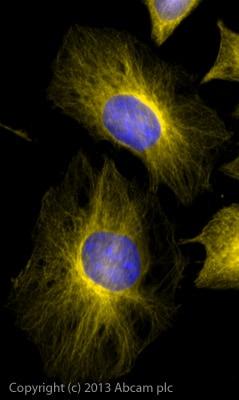 Immunocytochemistry/ Immunofluorescence - Donkey Anti-Rabbit IgG H&L (Alexa Fluor® 568) preadsorbed (ab175693)