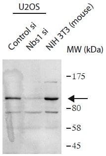 Western blot - Anti-p95/NBS1 antibody (ab175800)