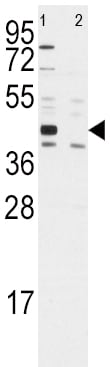 Western blot - Anti-ALDH1A3 antibody (ab175844)