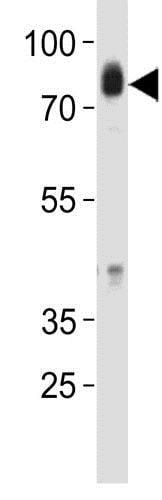 Western blot - Anti-Hck antibody - N-terminal (ab175886)