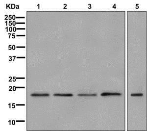 Western blot - Anti-SAP18 antibody [EPR12956(B)] (ab175920)