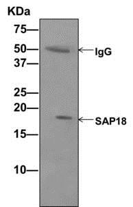 Immunoprecipitation - Anti-SAP18 antibody [EPR12956(B)] (ab175920)