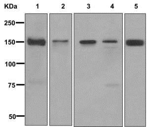 Western blot - Anti-EPB41L2 antibody [EPR8873(2)] (ab175928)