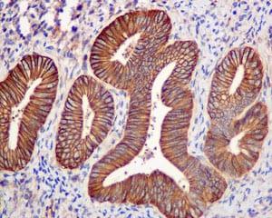 Immunohistochemistry (Formalin/PFA-fixed paraffin-embedded sections) - Anti-EPB41L2 antibody [EPR8873(2)] (ab175928)