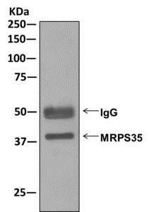 Immunoprecipitation - Anti-MRPS35 antibody [EPR11730] (ab175931)