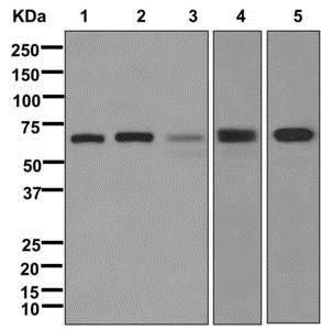 Western blot - Anti-Albumin antibody [EPR12780(B)] (ab175934)