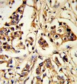 Immunohistochemistry (Formalin/PFA-fixed paraffin-embedded sections) - Anti-ARHGAP18 antibody (ab175970)