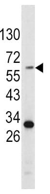 Western blot - Anti-Tyrosinase antibody - C-terminal (ab175997)