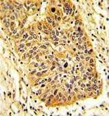 Immunohistochemistry (Formalin/PFA-fixed paraffin-embedded sections) - Anti-RIOK1 antibody - N-terminal (ab176005)