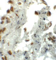 Immunohistochemistry (Formalin/PFA-fixed paraffin-embedded sections) - Anti-EZH1 antibody - N-terminal (ab176115)