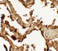 Immunohistochemistry (Formalin/PFA-fixed paraffin-embedded sections) - Anti-VKORC1 antibody - N-terminal (ab176118)