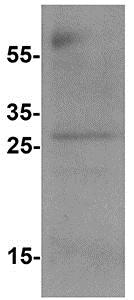 Western blot - Anti-B7H4 antibody (ab176146)