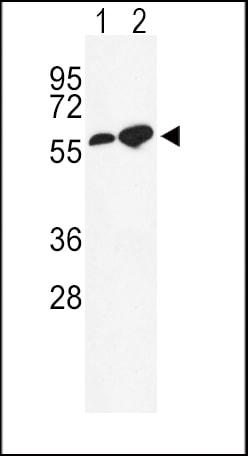 Western blot - Anti-GABA A Receptor alpha 2 antibody - C-terminal (ab176170)