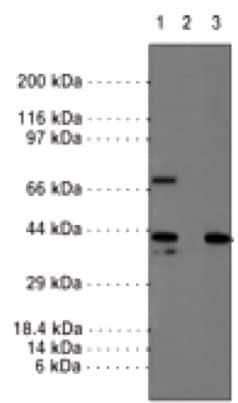 Western blot - Anti-JMJD6 antibody (ab176172)