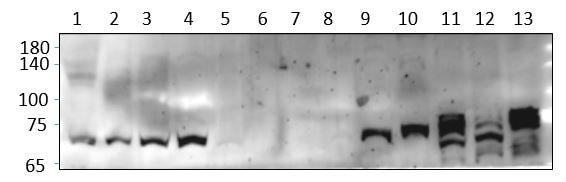 Western blot - Anti-Nurr1 antibody (ab176184)