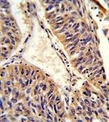 Immunohistochemistry (Formalin/PFA-fixed paraffin-embedded sections) - Anti-ALG14 antibody (ab176239)