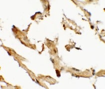 Immunohistochemistry (Formalin/PFA-fixed paraffin-embedded sections) - Anti-WDR18 antibody (ab176261)