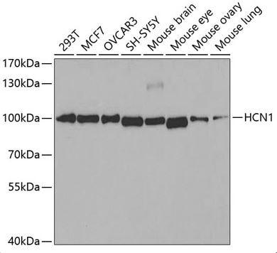 Western blot - Anti-HCN1 antibody (ab176304)