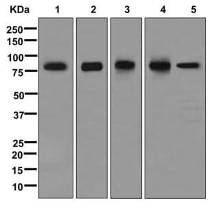 Western blot - Anti-LIMPII antibody [EPR12080] (ab176317)