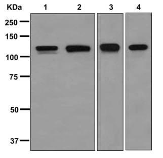 Western blot - Anti-Drebrin antibody [EPR12640(B)] (ab176318)
