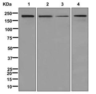 Western blot - Anti-ATAD2 antibody [EPR12730] (ab176319)
