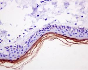 Immunohistochemistry (Formalin/PFA-fixed paraffin-embedded sections) - Anti-Loricrin antibody [EPR7148(2)(B)] (ab176322)
