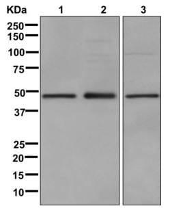 Western blot - Anti-LXR alpha antibody [EPR6508(N)] (ab176323)