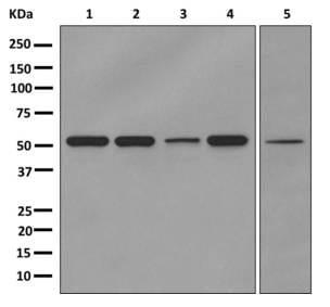 Western blot - Anti-GPCR GPRC5B antibody [EPR10191] (ab176326)