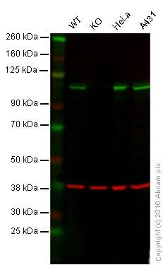 Western blot - Anti-GANAB antibody [EPR12376] (ab176349)