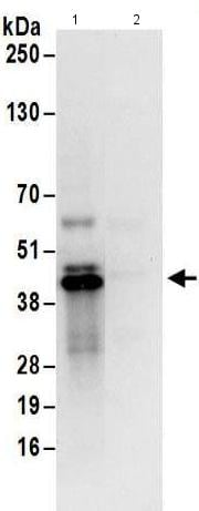 Immunoprecipitation - Anti-UCH37 antibody (ab176377)