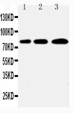 Western blot - Anti-PLK2 antibody - C-terminal (ab176392)