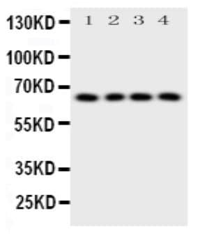 Western blot - Anti-Parathyroid Hormone Receptor 1/PTH1R antibody (ab176393)