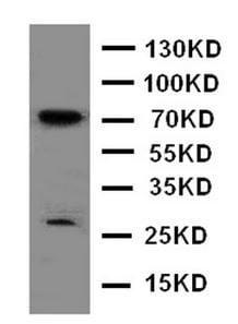 Western blot - Anti-HIF3 alpha/IPAS antibody (ab176464)