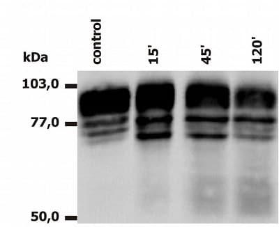 Western blot - Anti-CD18 antibody [MEM148] - Low endotoxin, Azide free (ab176540)
