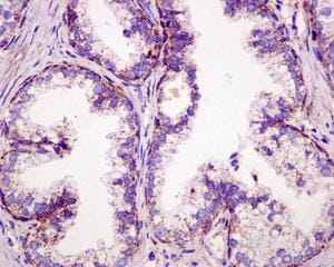 Immunohistochemistry (Formalin/PFA-fixed paraffin-embedded sections) - Anti-mtTFA antibody [EPR12285] (ab176558)