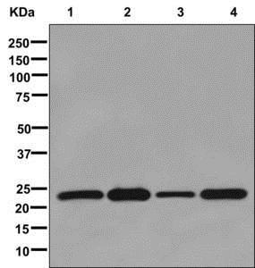 Western blot - Anti-mtTFA antibody [EPR12285] (ab176558)