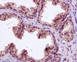 Immunohistochemistry (Formalin/PFA-fixed paraffin-embedded sections) - Anti-SFT antibody [EPR13000(B)] (ab176561)