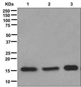 Western blot - Anti-SFT antibody [EPR13000(B)] (ab176561)