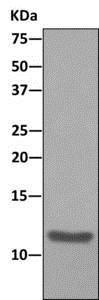 Immunoprecipitation - Anti-MIF antibody [EPR12462] (ab176565)
